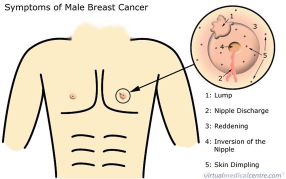 Lelaki Juga Berpotensi Untuk Menghidap Kanser Payudara