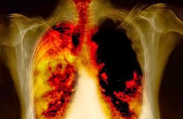 kanser paru-paru stage 4 xray